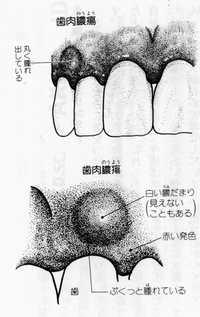 歯槽膿漏-抜かずに治す p190